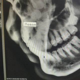 Фотография Xolbek: мои зубы